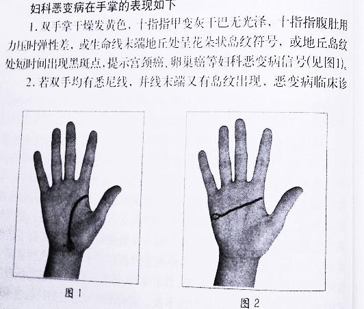掌纹图解(之)手相掌纹诊病